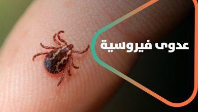 صورة تركيا.. الإعلام التركي يتحدث عن عدوى فيروسية مختلفة تصيب العشرات من المواطنين