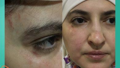 صورة -اعتداء بالضرب وخلع حجاب-.. هذا ما حصل مع سيدات سوريات في مدينة غازي عنتاب التركية